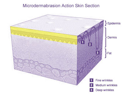 Microdermabrasion Action Skin Section
