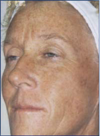 Female with sun damage before treatment.