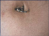 Reduction in abdomen hair following a course of 3 IPL treatments over 2 months