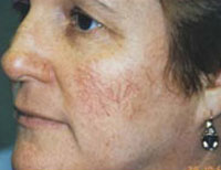 Female with facial thread veins.