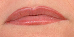 Lips after micropigmentation