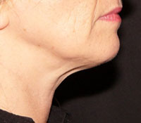 Chin after Thermage treatment