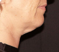 Chin before Thermage treatment