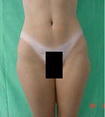 Outer Thighs After Laser Lipolysis Treatment