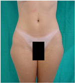 Outer Thighs Before Laser Lipolysis Treatment