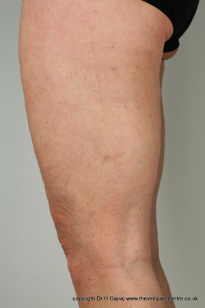 After sclerotherapy treatment