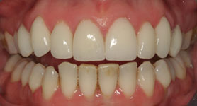 Close-up After Treatment with Cosmetic Veneers