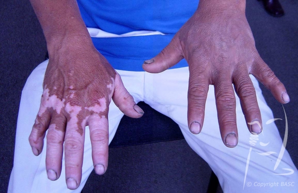 Vitiligo on hands, before and after skin camouflage