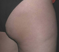 Cellulite after treatment with Accent RF