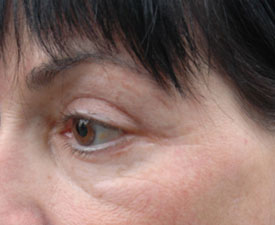 Crow's feet after 4 treatments with Accent RF