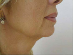 Face after treatment with Accent RF
