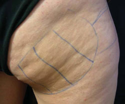 Cellulite before treatment with Accent RF