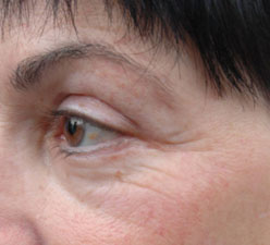 Radiofrequency For Facial Rejuvenation Information