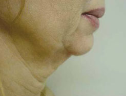 Face before treatment with Accent RF
