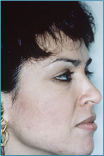 Acne after microdermabrasion treatment