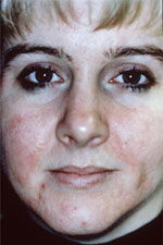 Acne before microdermabrasion treatment