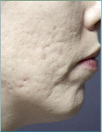 Acne Sacrring After Microdermabrasion