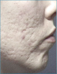 Acne Scarring Before Microdermabrasion
