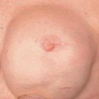 Aerola on a female before semi permanent make-up
