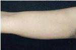 Smart Lipo - Upper Arm After Treatment