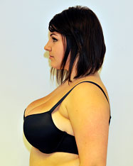 Female after liposuction breast reduction - Side View