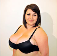 Female before breast reduction - Front View