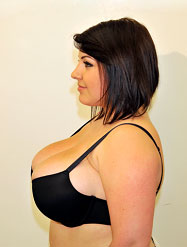 Female before breast reduction - Side View