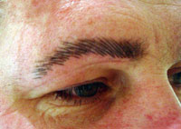 Eyebrow redefinition with micropigmentation