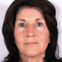 Female before micropigmentation