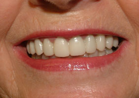 Close-up After Treatment with Cosmetic Correction of Crowns and Gum Contouring