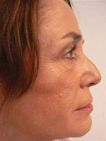 After Evolence Treatment - Mid face volume loss.