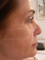 Before Evolence Treatment - Mid face volume loss.