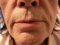 Before Evolence Treatment - Peri-oral lines around the mouth.