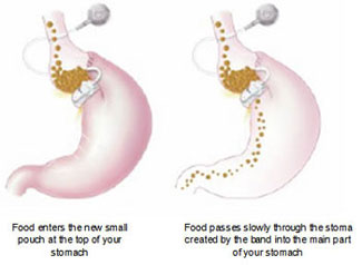 Gastric Band Illustration