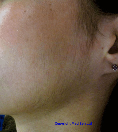 pcos facial hair dating