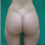 Love Handles Before Laser Lipolysis Treatment