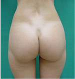 Smart Lipo - Love Handles After Treatment