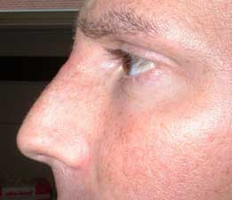 Male nose reshaped with dermal filler treatment with Succeev