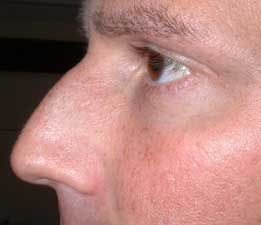Male nose before reshaping with dermal fillers