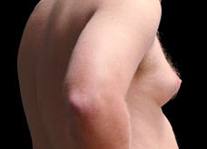 A painful and swollen right breast in a young male