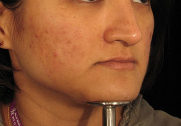 Acne after Dermaroller treatment