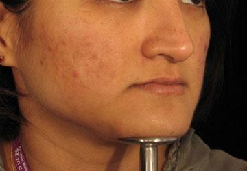 Acne after Dermaroller treatment