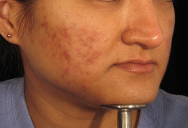 Acne before Dermaroller treatment