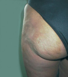 Posterior after injection of Bio-Alcamid™