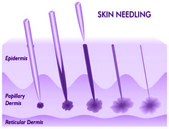 Medical Skin Needline Mechanism of Action