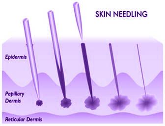 Medical Skin Needling, Dermaroller, Collagen Induction Therapy