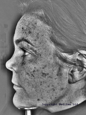 UV image showing pigmentation