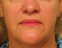 Face 2½ months after Titan treatment