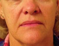 Face before Titan treatment