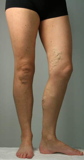 Left leg of a female with varicose veins before Endovenous Laser Ablation treatment